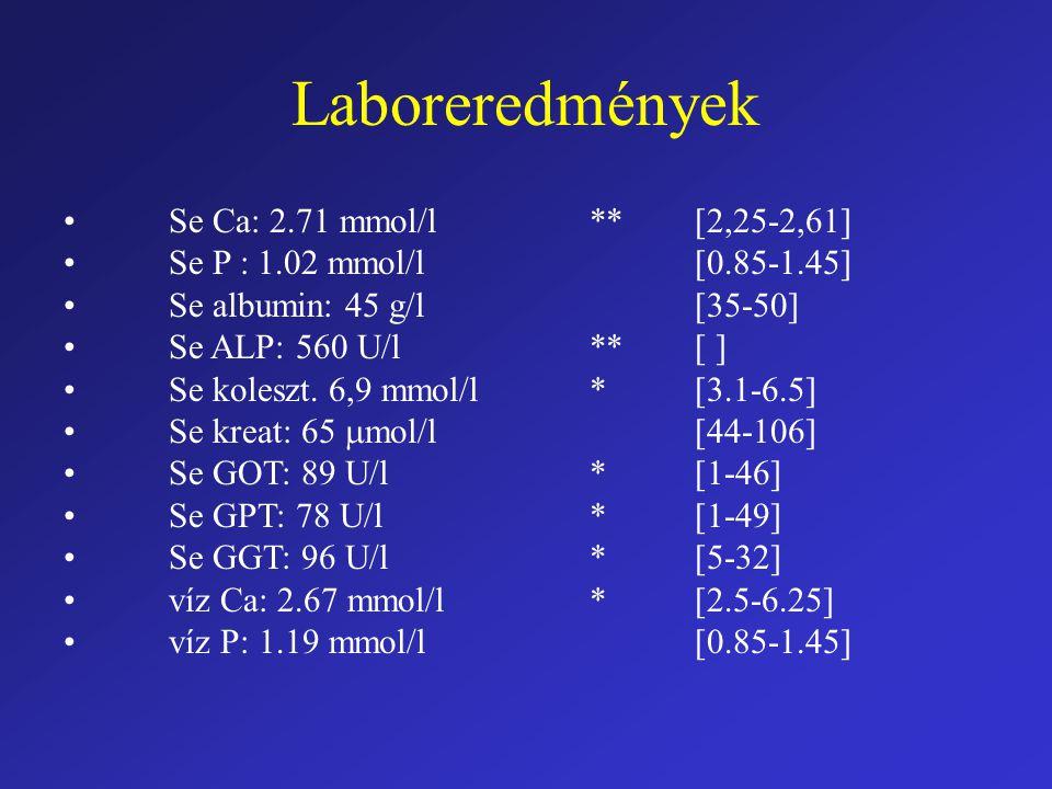 Laboreredmények • Se Ca: 2.71 mmol/l ** [2,25-2,61]